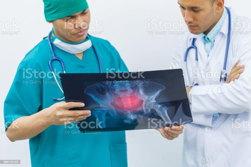 Two doctors are diagnosing the symptoms of a patient from x-ray at hip bone. concept of medical consult and treatment marrow. stock photo