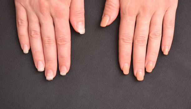 two hands, one with the old manicure and on the other hand the gel nails are torn off and real nails can be seen. - detachment stock pictures, royalty-free photos & images
