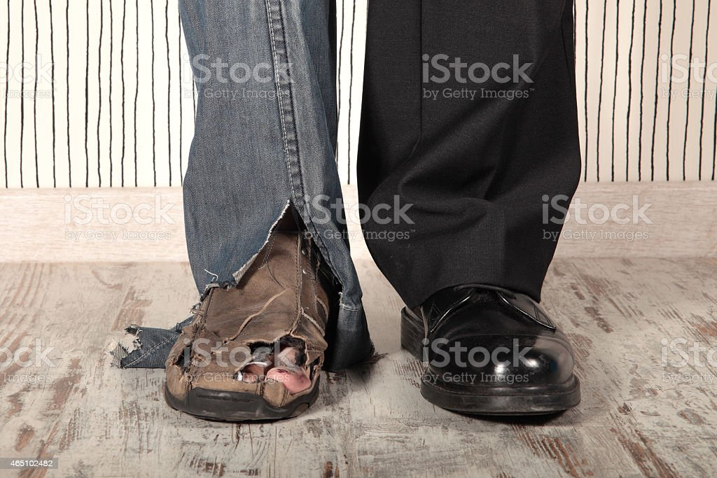 Two legs showing the difference between rich and poor stock photo