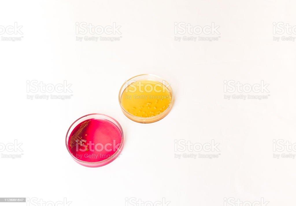 Zwei Petri Platten mit wachsender Bakterienkulturen im medizinischen Labor – Foto