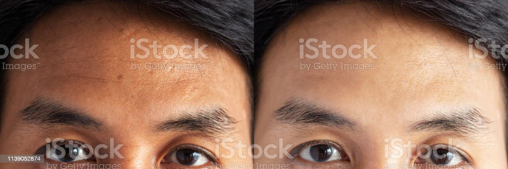 two pictures compared effect Before and After treatment. skin with problems of freckles , pore , dull skin and wrinkles around forehead before and after treatment to solve skin problem for better skin stock photo