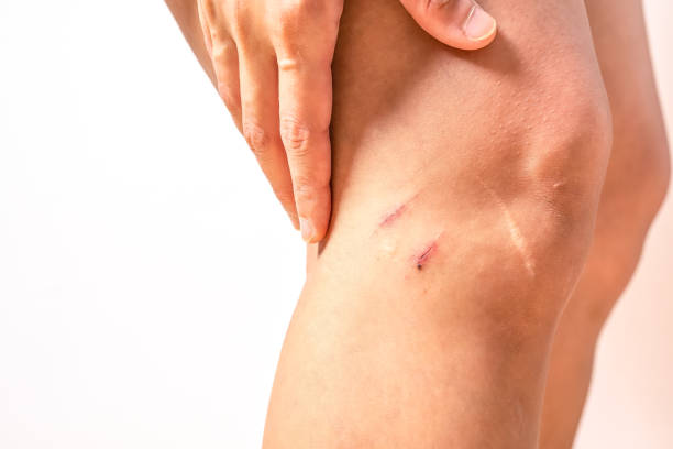 two scratch wound on female knee with big scar closeup, healthcare and medicine concept two scratch wound on female knee with big scar closeup, healthcare and medicine concept scar stock pictures, royalty-free photos & images