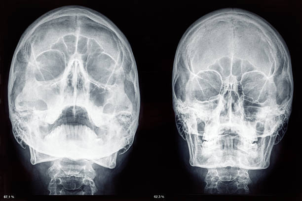 Two skulls x-rays stock photo