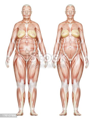 496193203istockphoto Two types of feminine bodies overweight, focus on muscles 176107695