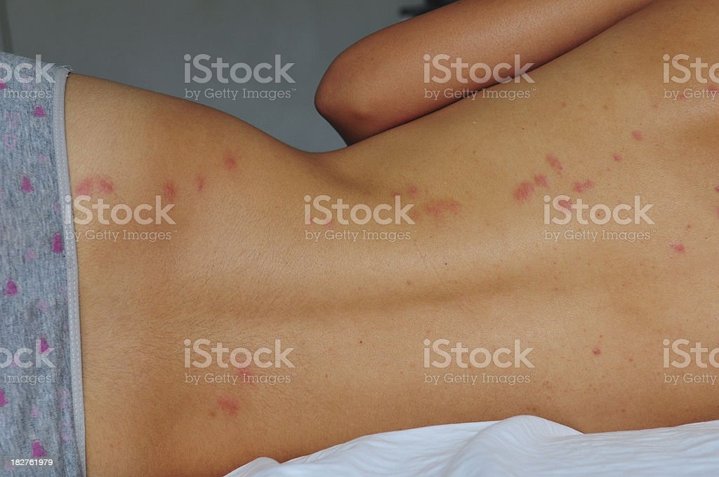 Bedbug Bites On Back Lying In Bed Stock Photo More Pictures Of