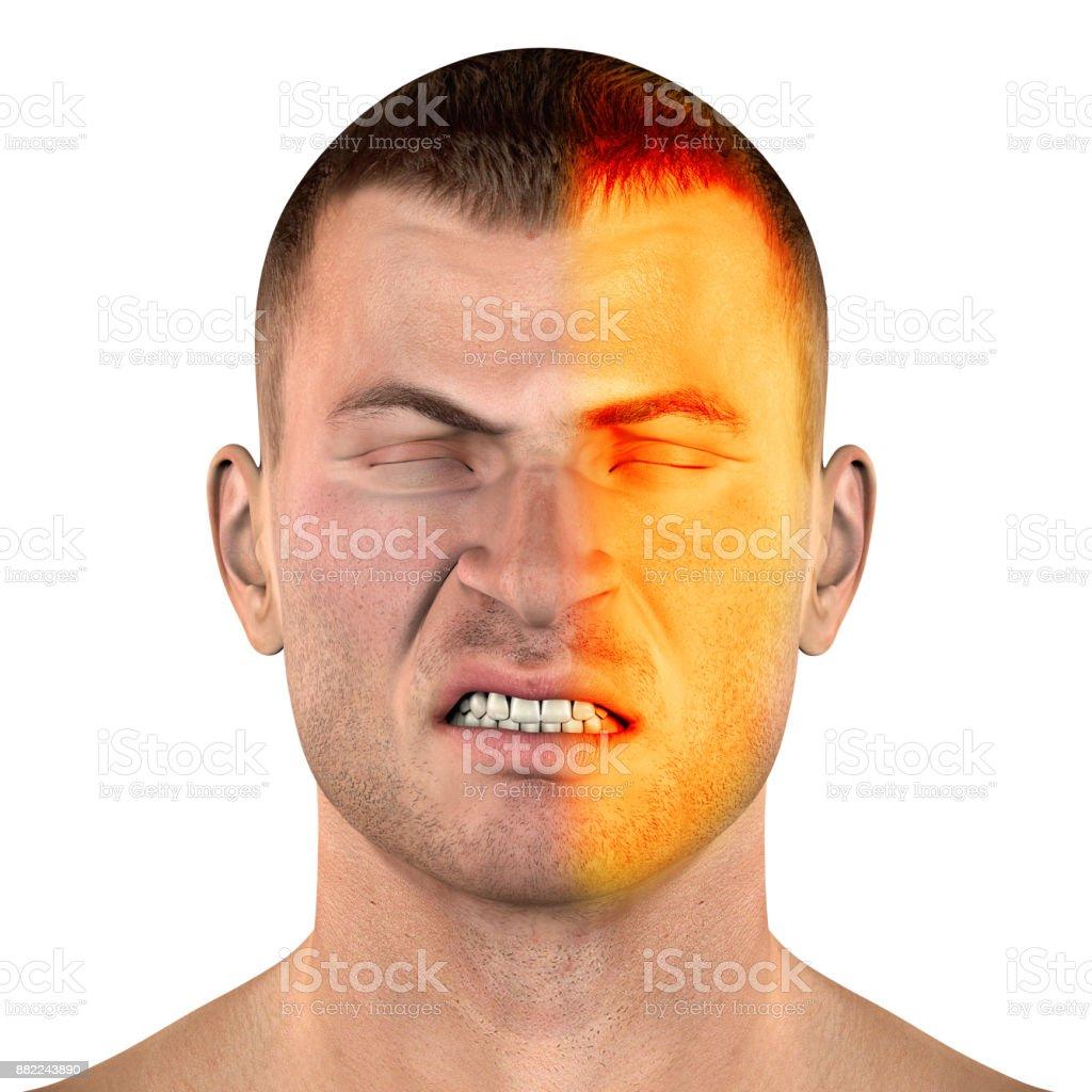 Type of migraine headache stock photo