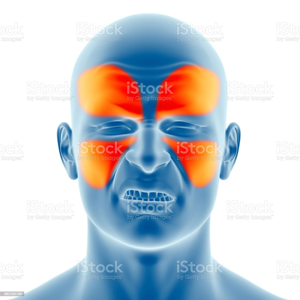 Type of sinus headache stock photo
