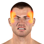Type of tension headache and jaw (TMJ)