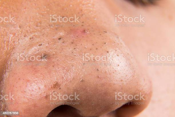 Ugly Pimples Acne Zit Blackheads On The Nose Of Teenager Stock Photo - Download Image Now