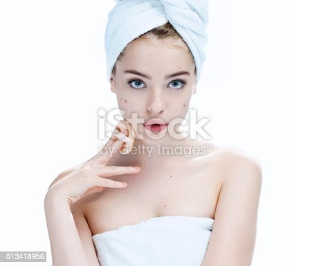532331272 istock photo Ugly problem skin girl. Woman skin care concept 513418956