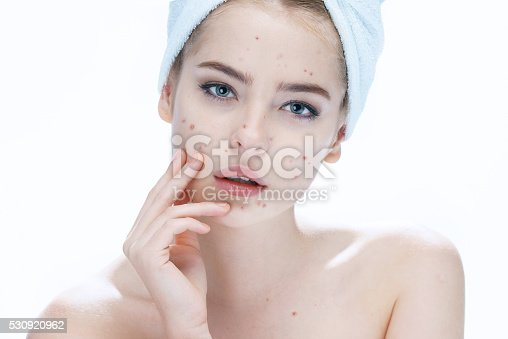 514727472istockphoto Ugly problem skin girl. Woman skin care concept 530920962