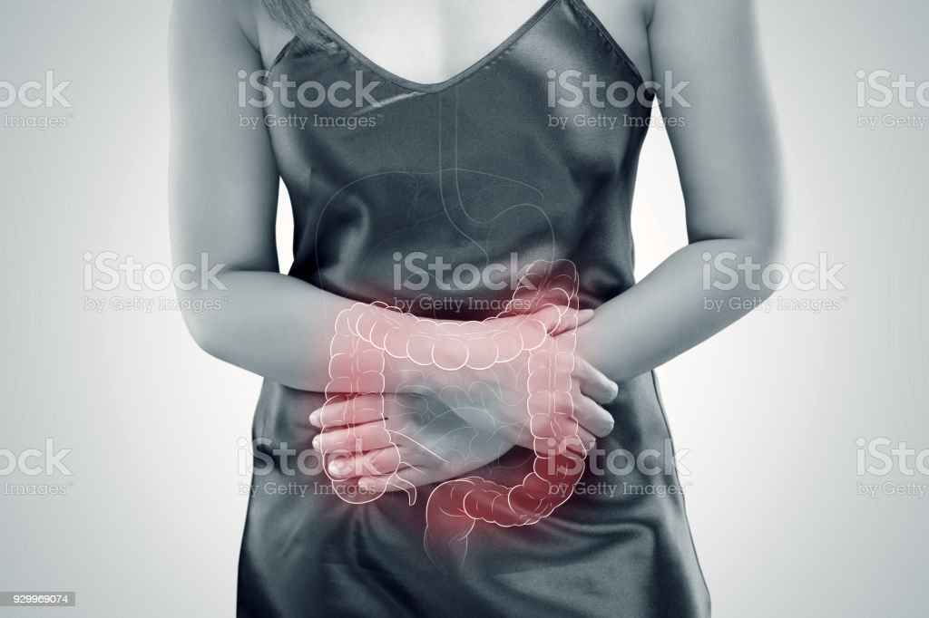 Ulcerative colitis (UC). intestine stock photo
