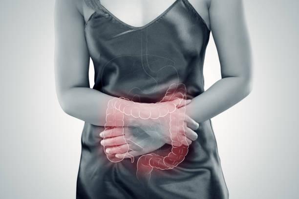 Ulcerative colitis (UC). intestine stock photo