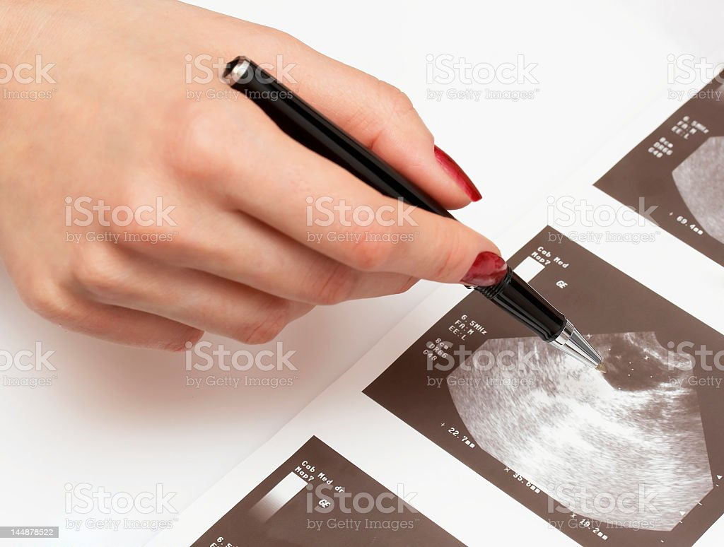 Ultrasound analysis being examined  stock photo