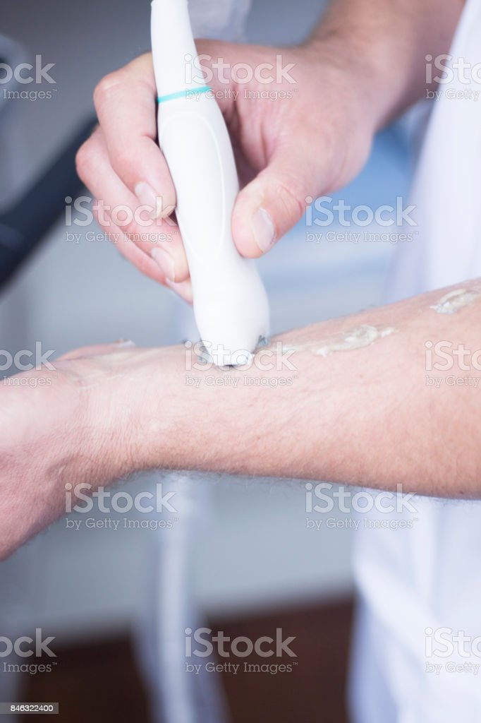 Ultrasound assisted EPI ecography intratissue percutaneous electrolysis physical therapy rehabilitation physiotherapist treatment stock photo