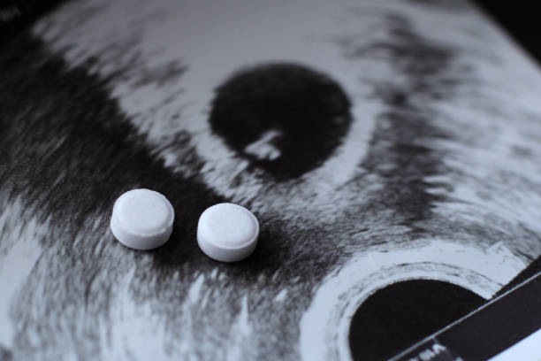Ultrasound of a pregnant woman and pills medication Ultrasound of a pregnant woman and pills medication so close abortion stock pictures, royalty-free photos & images