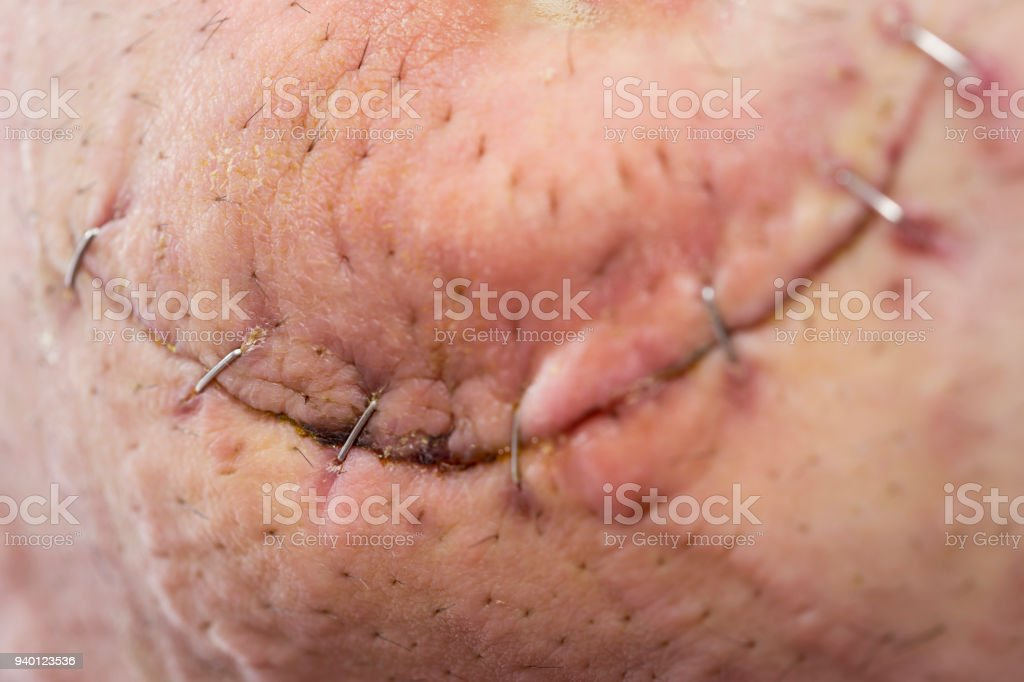 Umbilical Hernia After Surgery Stock Photo - Download Image