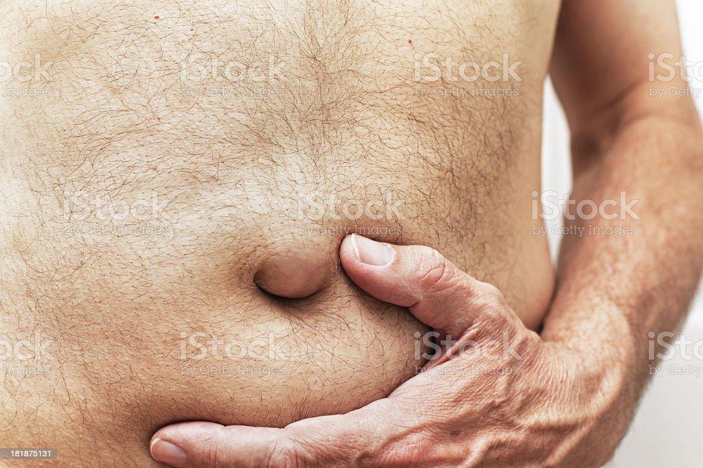 Umbilical Hernia Bulge Stock Photo More Pictures Of Abdomen Istock