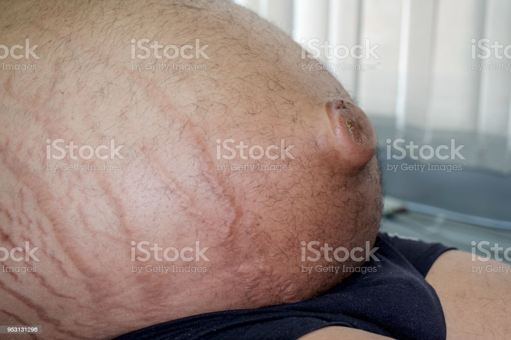Umbilical Hernia in a Patient with Ascites & Striae stock photo