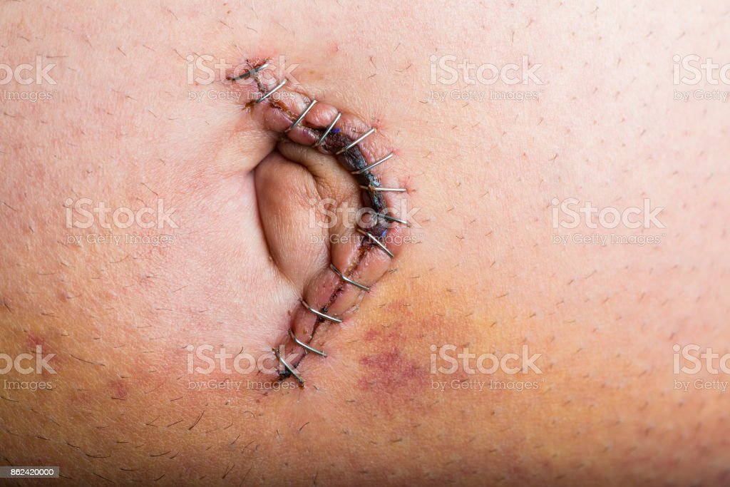 Umbilical hernia repair surgery stock photo