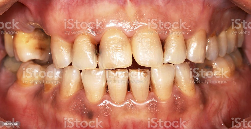 Uncared teeth stock photo