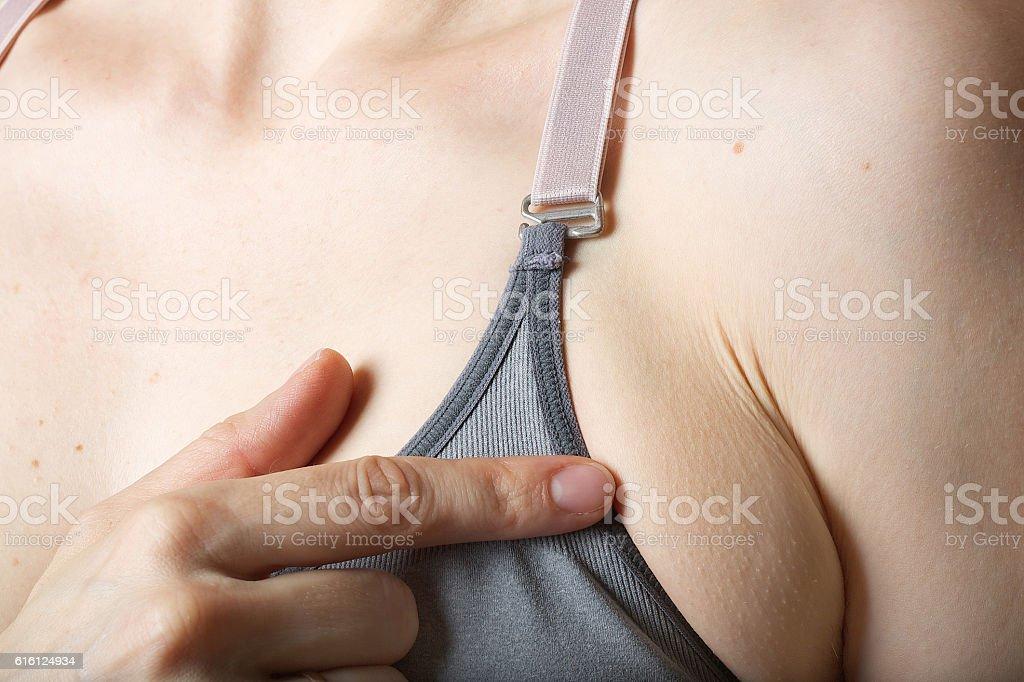 Underarm fat at young woman. Closeup stock photo