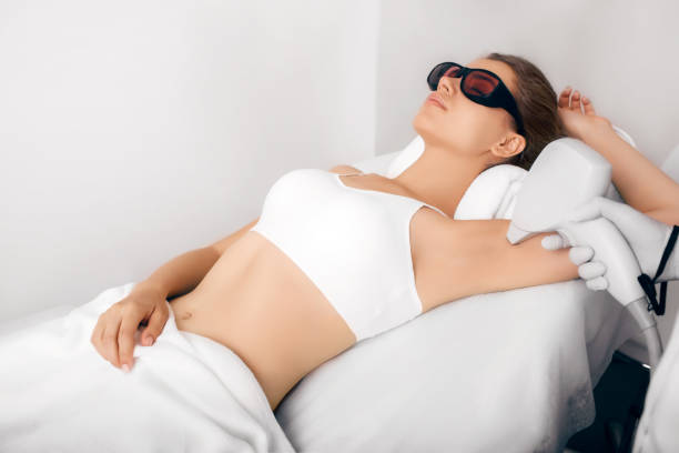 underarm laser epilation, hair removal - laser stock pictures, royalty-free photos & images