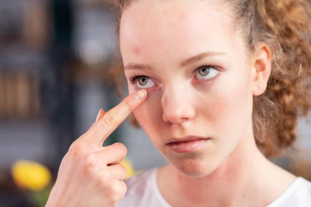 Unglückliche junge Dame mit lockigen Haaren juckt ihr Augenlid – Foto