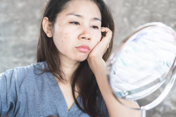 unhappy Asian woman checking her face skin problem with dark spot from scar acne unhappy Asian woman checking her face skin problem with dark spot from scar acne dark spots face stock pictures, royalty-free photos & images