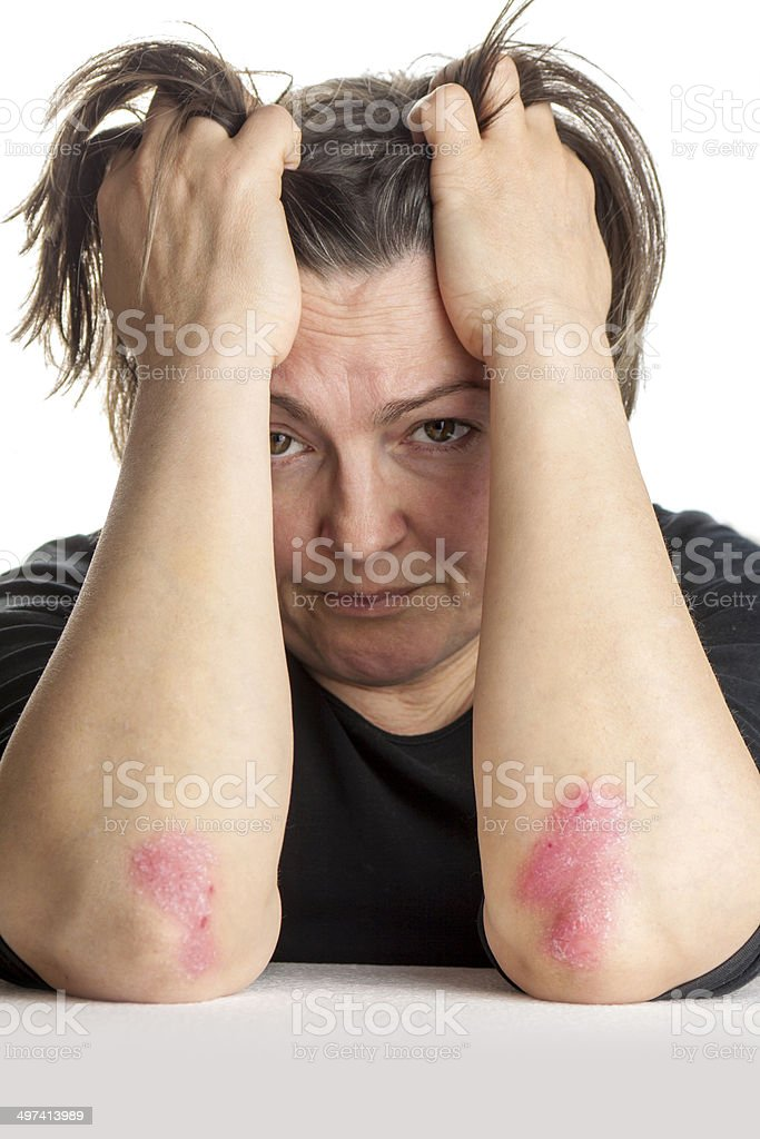 Unhappy woman with psoriasis stock photo