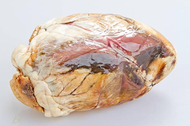 Unhealthy Heart stock photo