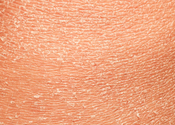 unhealthy human skin epidermis texture with flaking and cracked particles close-up - dry stock pictures, royalty-free photos & images