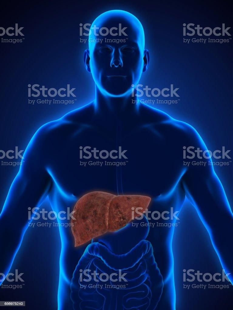 Unhealthy Liver Anatomy stock photo