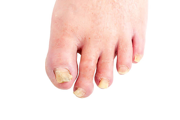 unhealthy toenails stock photo