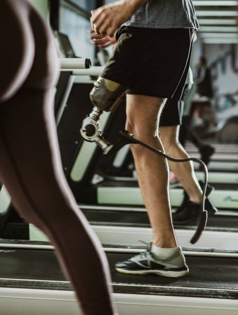 unrecognizable amputee exercising on treadmill in a gym. - runner rehab gym foto e immagini stock
