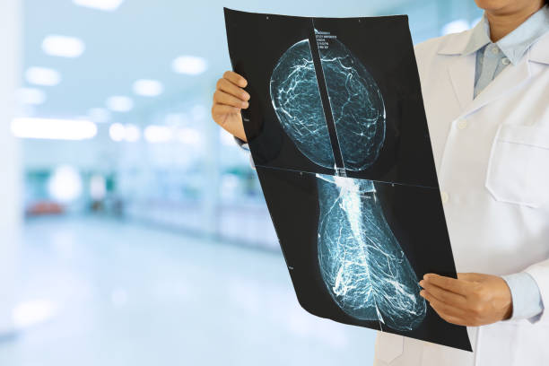 Unrecognizable female gynecologist looking at a mammogram checking for breast cancer at the hospital. Unrecognizable female gynecologist looking at a mammogram checking for breast cancer at the hospital. medical x ray stock pictures, royalty-free photos & images
