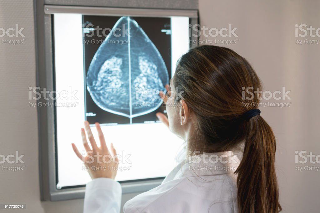 Unrecognizable female gynocologist looking at a mammogram at the hospital stock photo