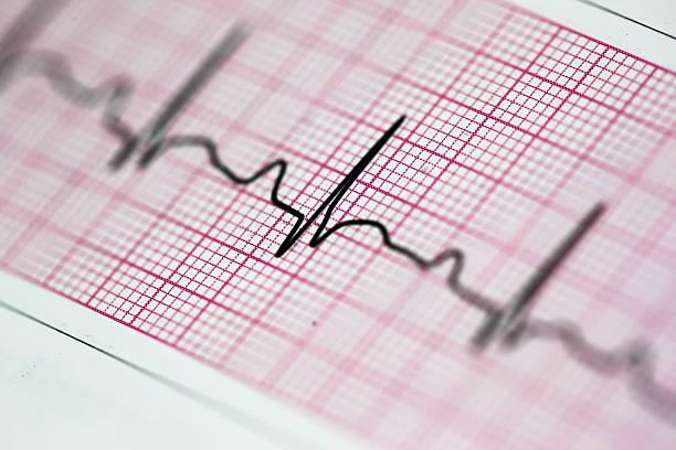 Heartbeat - foto de acervo
