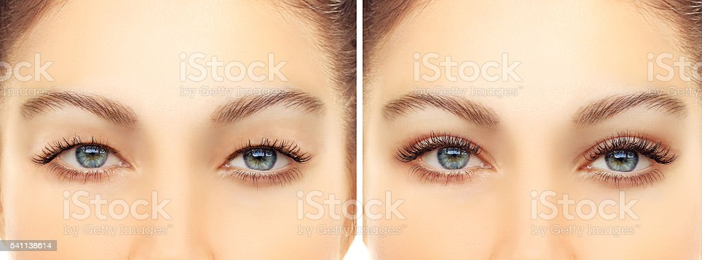 Upper blepharoplasty stock photo