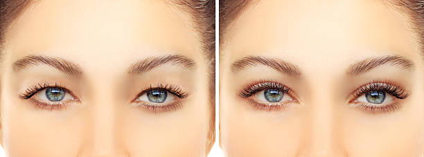 upper blepharoplasty - eyelid stock photos and pictures