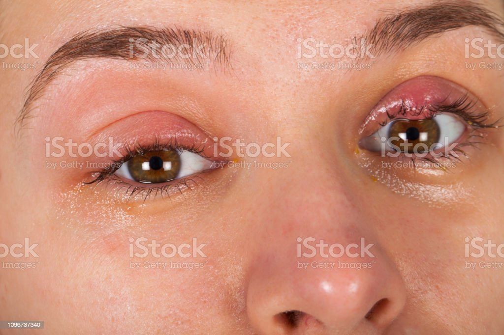 Oberlid-Infektion - Chalazion – Foto