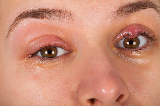 Upper eyelid infection - chalazion stock photo