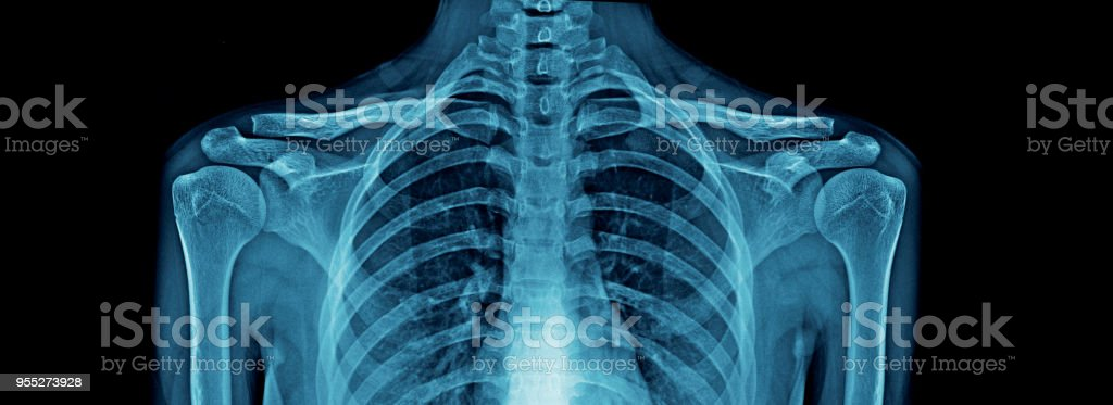 Upper Part Of Human Body Xray High Quality Chest Xray And Part Of