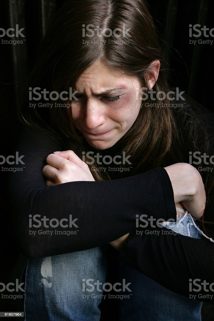 Upset girl Girl with black and blue eye crying for an abuse concept 20-29 Years Stock Photo