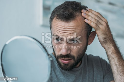 istock upset middle aged man with alopecia looking at mirror, hair loss concept 1040532764