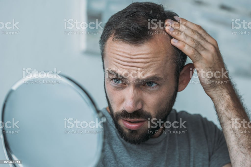upset middle aged man with alopecia looking at mirror, hair loss concept stock photo