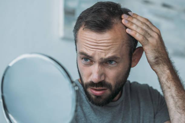 aufgeregt Mann mittleren Alters mit Alopezie Blick auf Spiegel, Haar-Verlust-Konzept – Foto