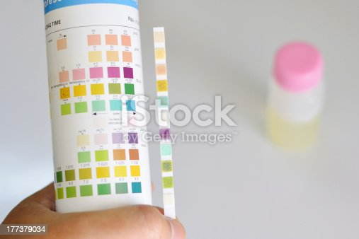 Urine analysis by using chemical strip test