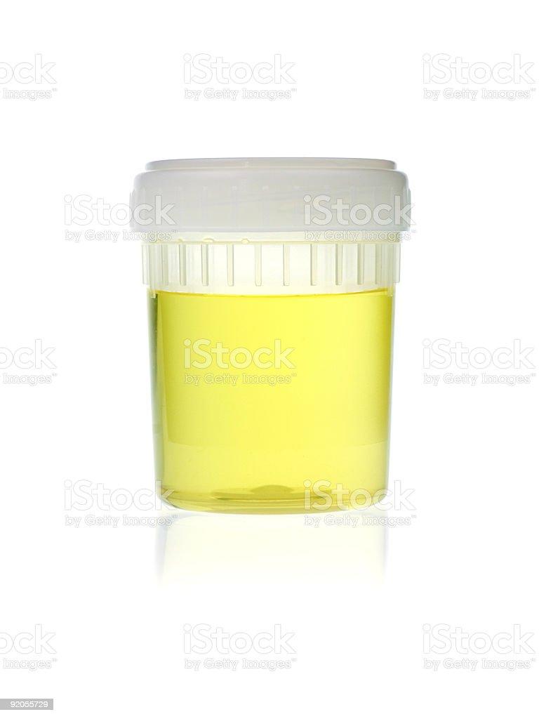 Urine analysis royalty-free stock photo