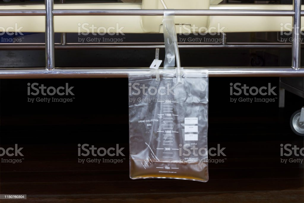 Urine bag hanging beside the patient\'s bed. Inside the hospital room